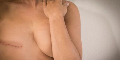 Should I Have Breast Reconstruction After Mastectomy?