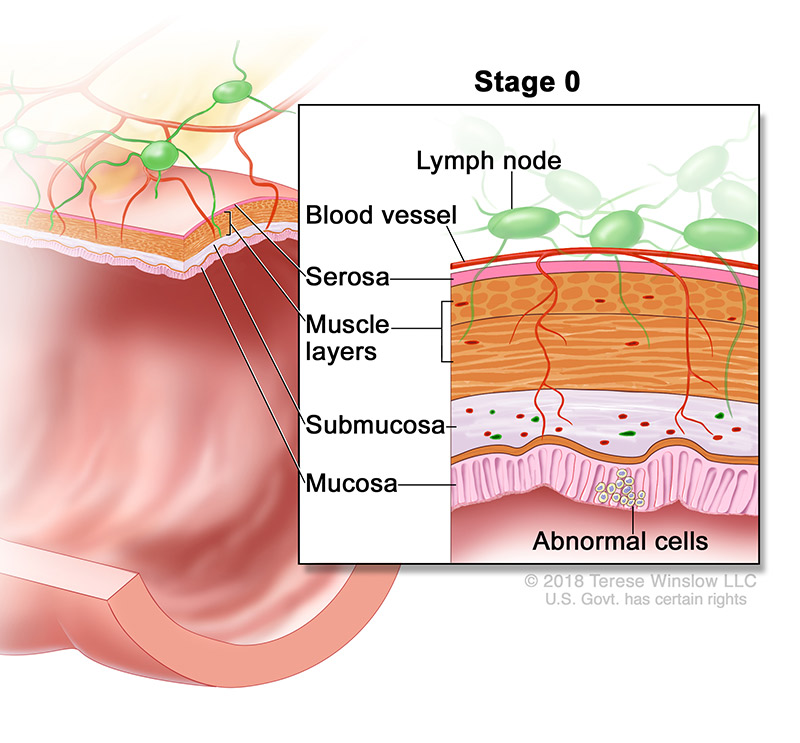 colorectal-ca-stage-0