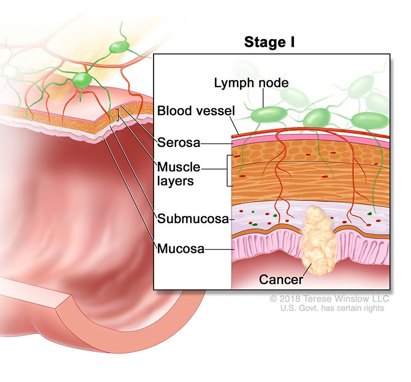 colorectal-ca-stage-1