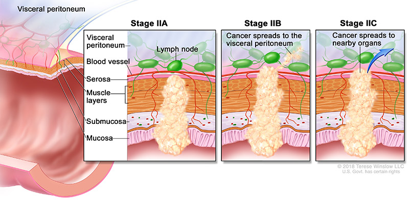 colorectal-ca-stage-2