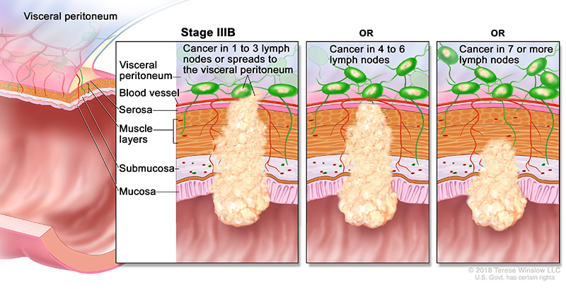 colorectal-ca-stage-3B