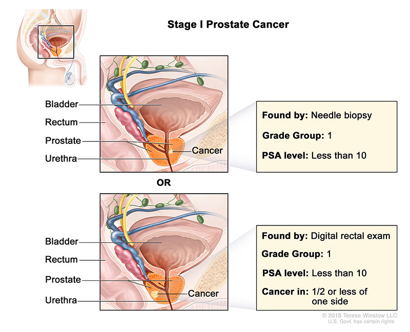 prostate-stage-1