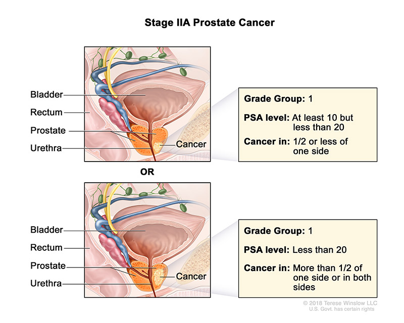 prostate-stage-2A