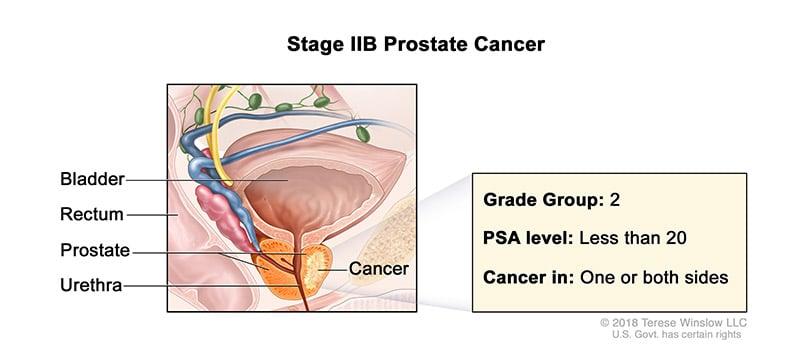 prostate-stage-2B