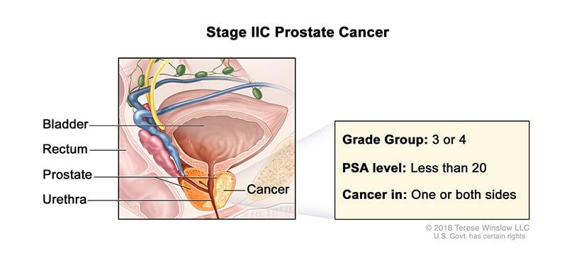 prostate-stage-2C