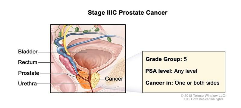 prostate-stage-3C