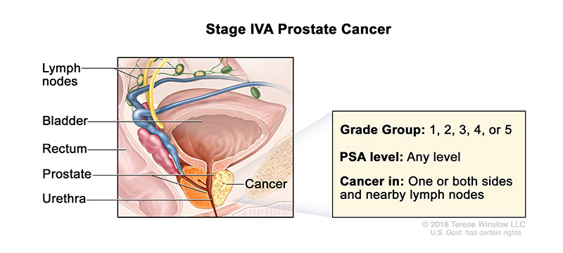 prostate-stage-4A