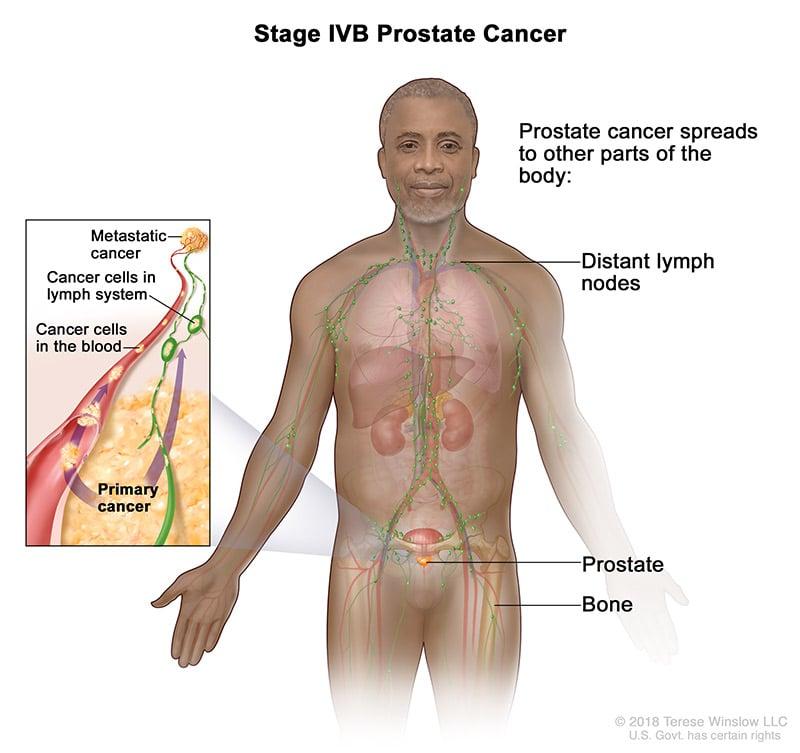 prostate-stage-4B