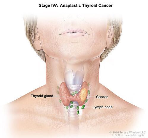 thyroid-ca-anaplastic-stage4A