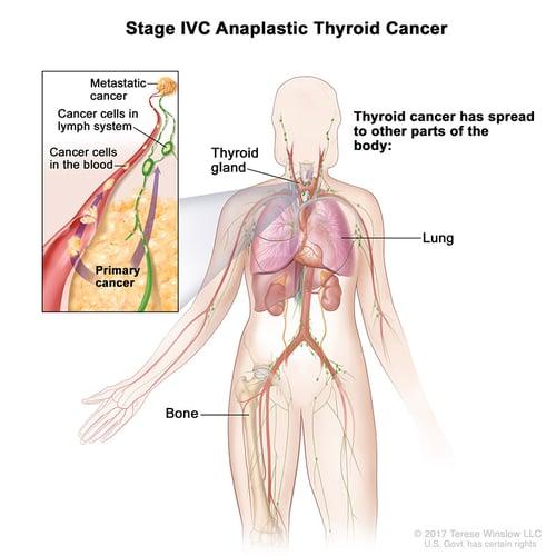 thyroid-ca-anaplastic-stage4C