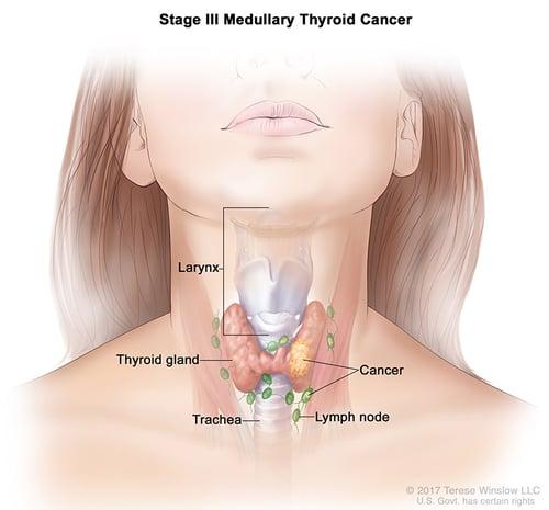 thyroid-ca-medullary-stage-3