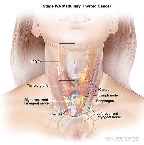 thyroid-ca-medullary-stage-4A