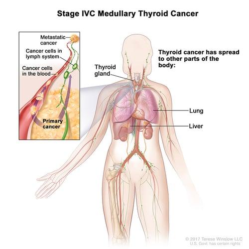 thyroid-ca-medullary-stage-4C