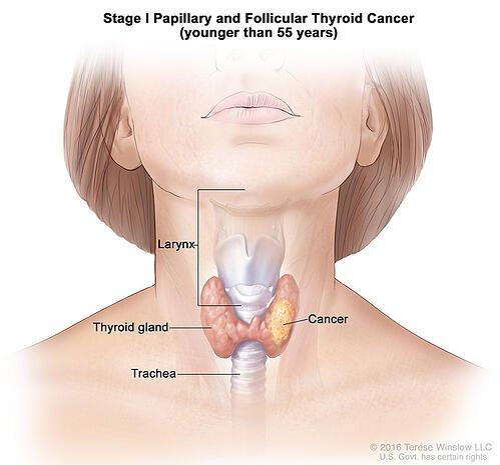 thyroid-ca-papillary-follicular-stage-1-55under (1)