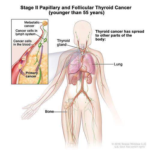 thyroid-ca-papillary-follicular-stage-2-55under