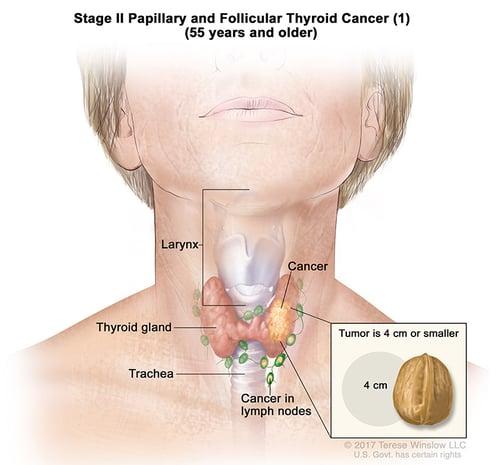 thyroid-ca-papillary-follicular-stage-2-part1-55over