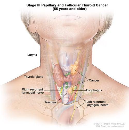 thyroid-ca-papillary-follicular-stage-3-55over