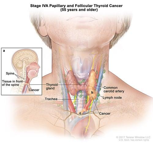 thyroid-ca-papillary-follicular-stage-4A-55over