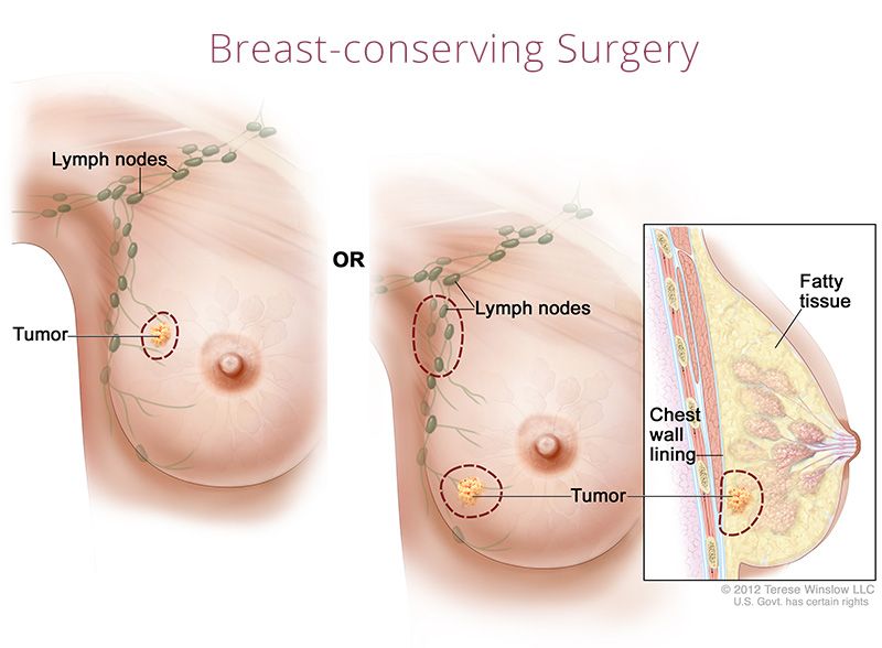 breast conserving surgery female