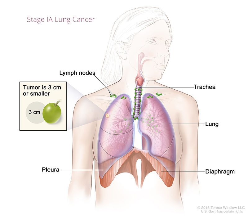 Lung Cancer Stage IA