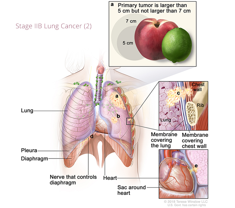 Lung Cancer Stage IIB 2