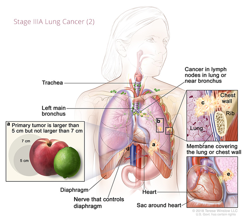 Lung Cancer Stage IIIA 2
