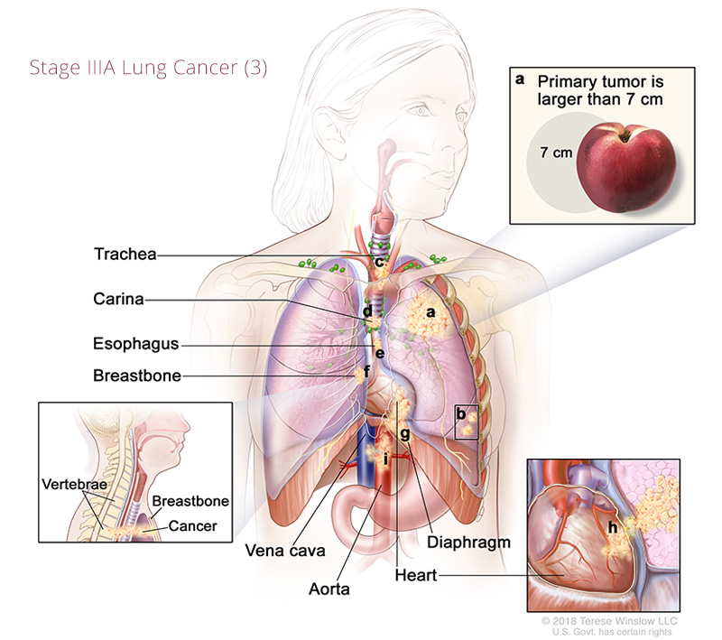 Lung Cancer Stage IIIA 3