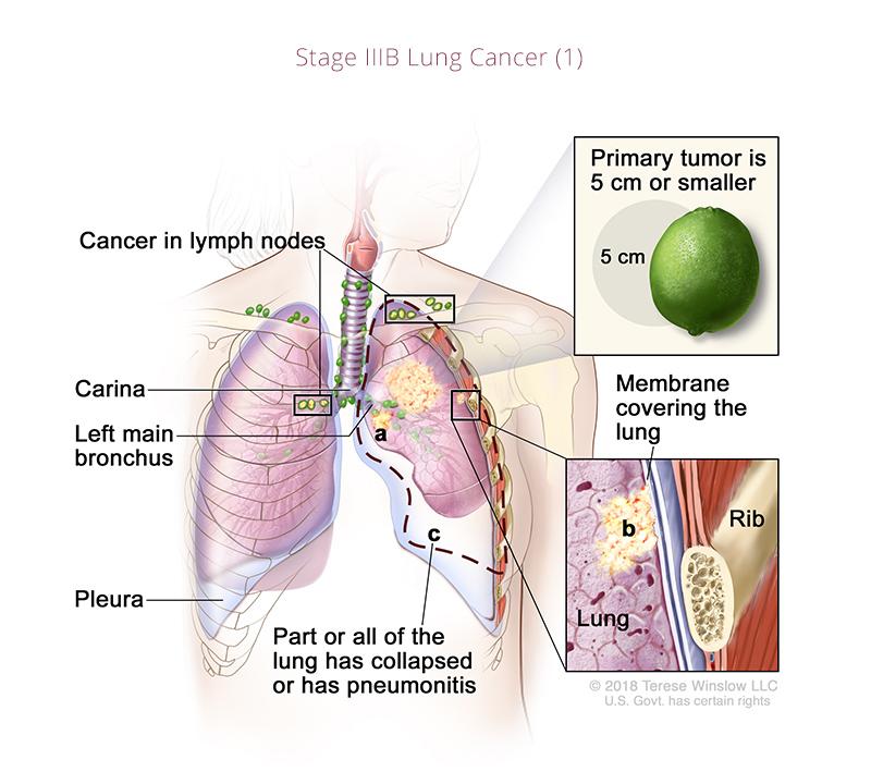 Lung Cancer IIIB 1