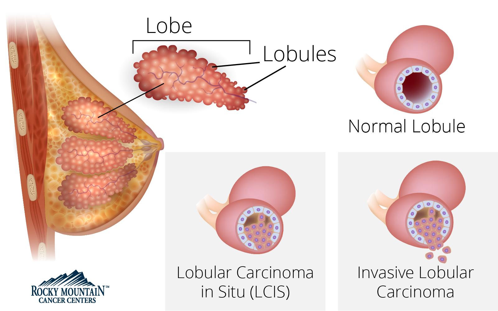 Breast Cancer Types & Hormone Receptors