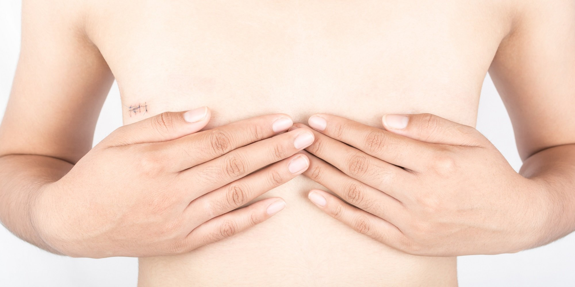 Choosing Breast Reconstruction After a Mastectomy