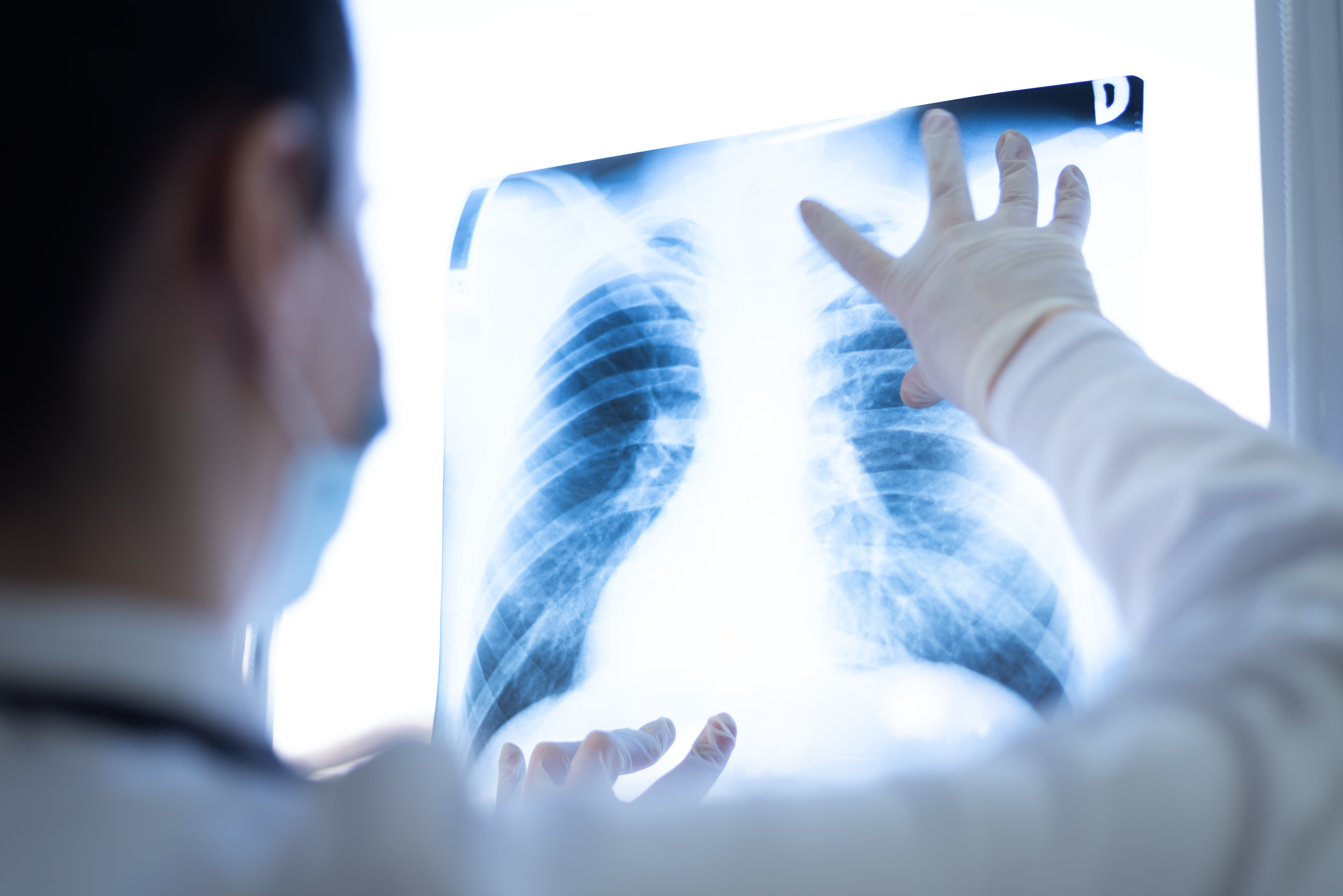 What Are Symptoms of Lung Cancer?